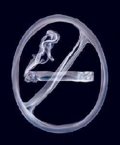 Quit Smoking Hypnosis Auckland